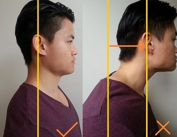 forward head posture dowager